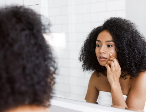 9 Ways to Heal Over-Exfoliated Skin