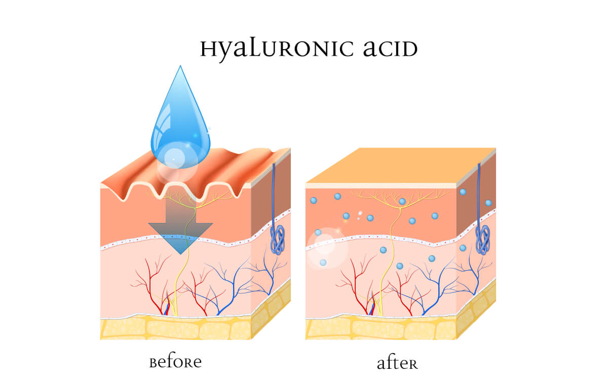 Infographic of skin before and after hyaluronic acid is used
