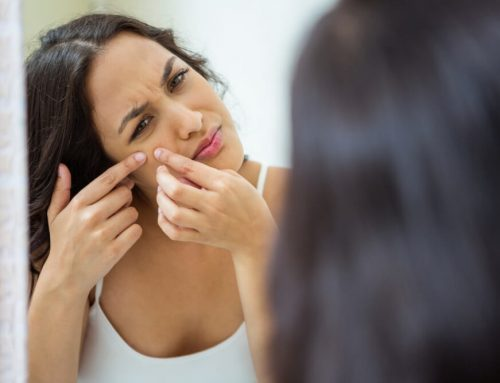 How to Get Rid of Breakouts