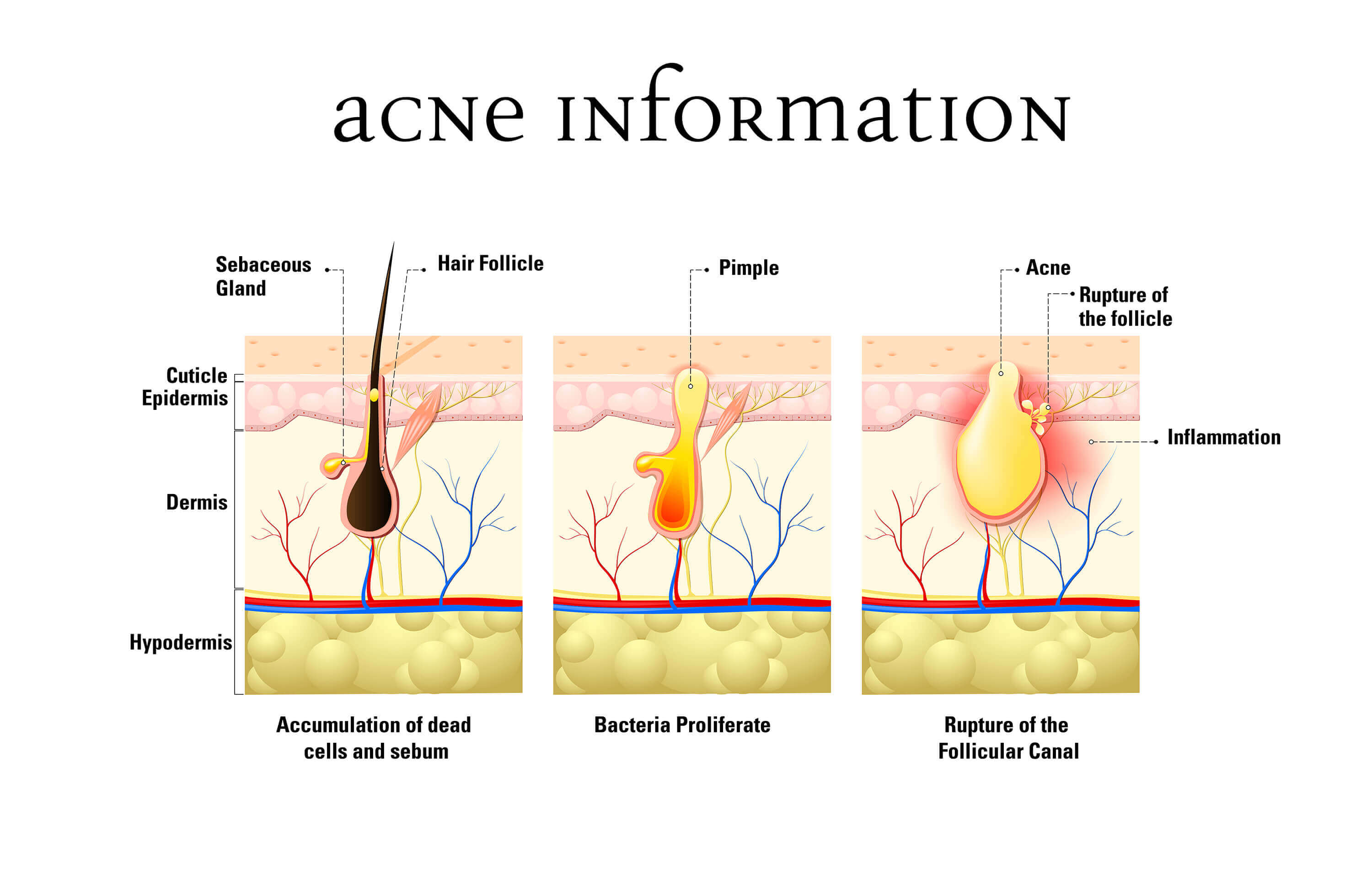 Infographic on acne formation