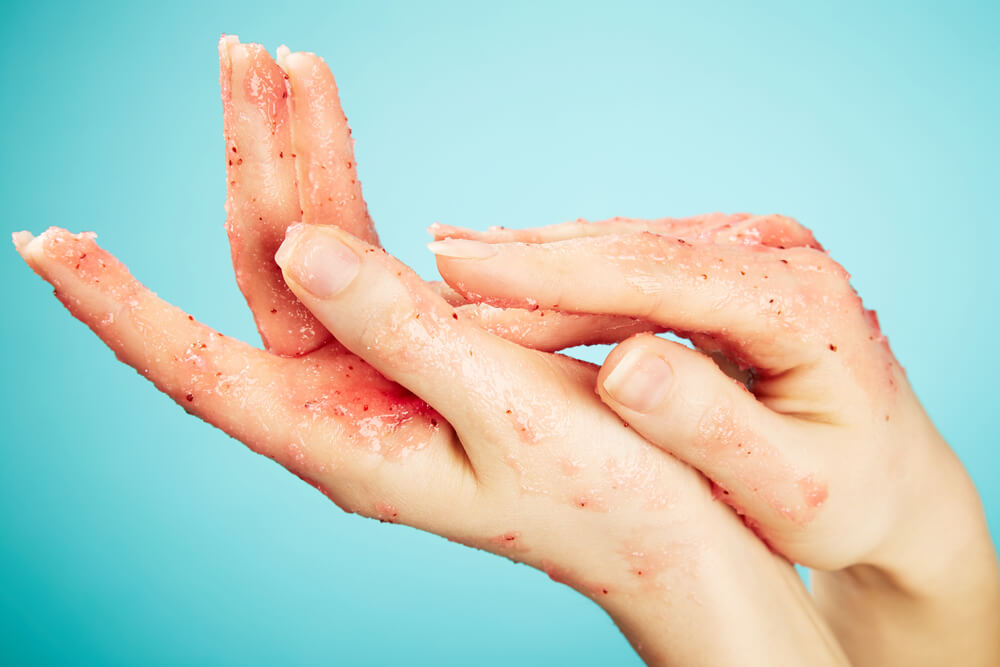 Hands with body scrub